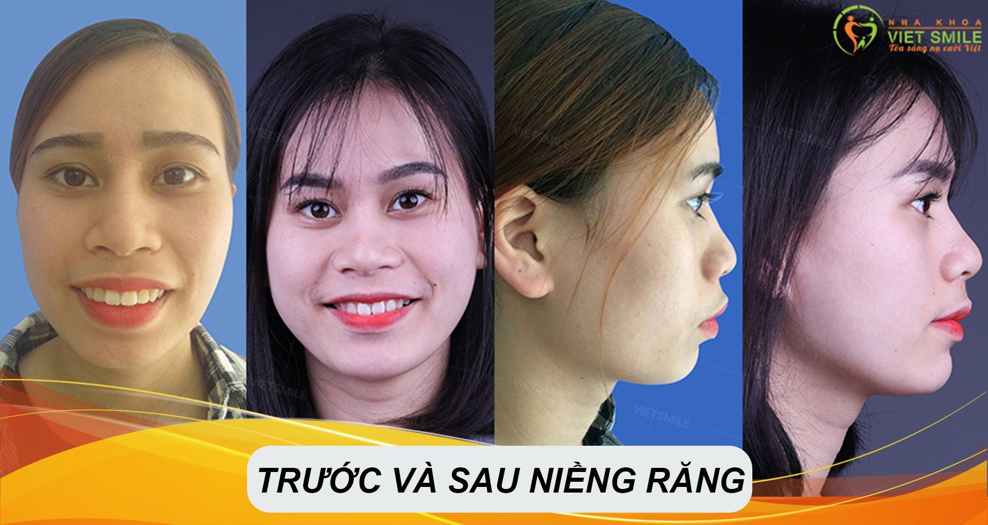 Nụ cười khách hàng sau khi niềng răng tại tại Nha khoa Việt Smile
