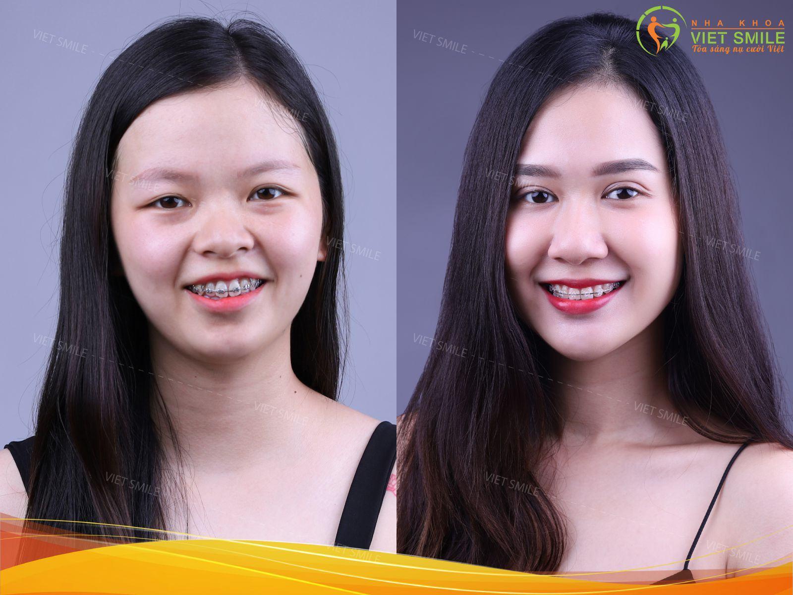 Khách hàng đang niềng răng tại Nha khoa Việt Smile