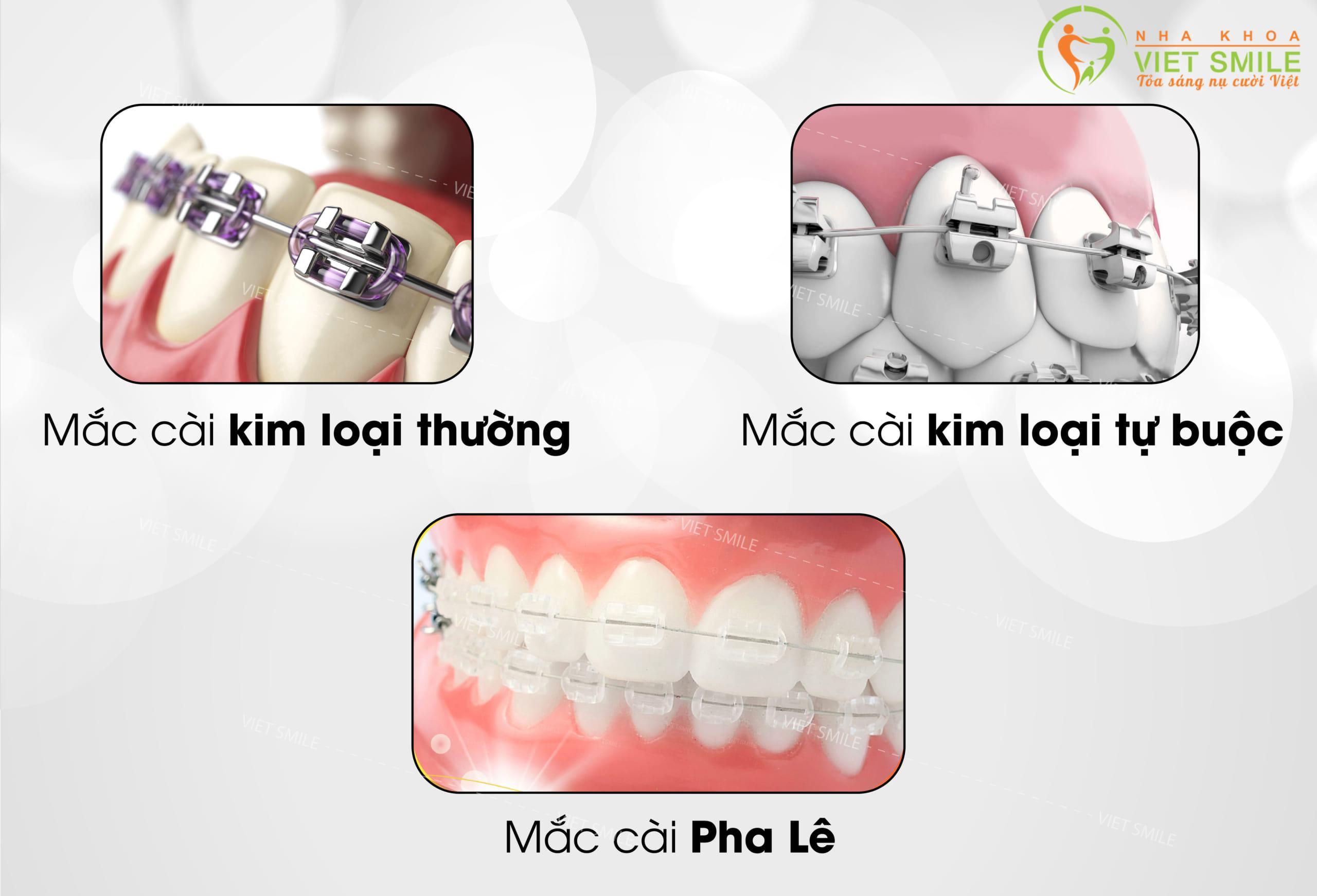 Hệ thống mắc cài linh hoạt về chi phí - hiệu quả tối đa tại Nha khoa Việt Smile