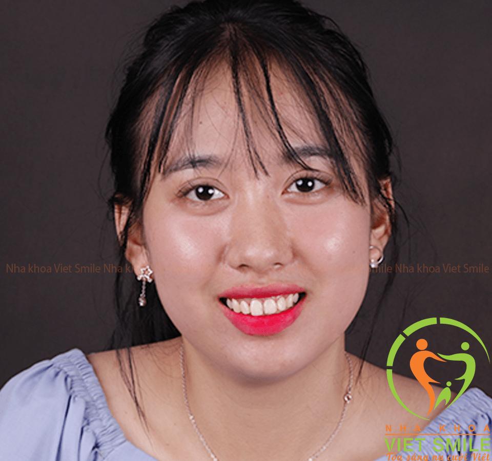Nụ cười mới của cô nàng sau khi được bs nguyễn hữu vinh tiến hành tiểu phẫu